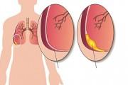 Tràn dịch màng phổi không chỉ đơn thuần bệnh lao